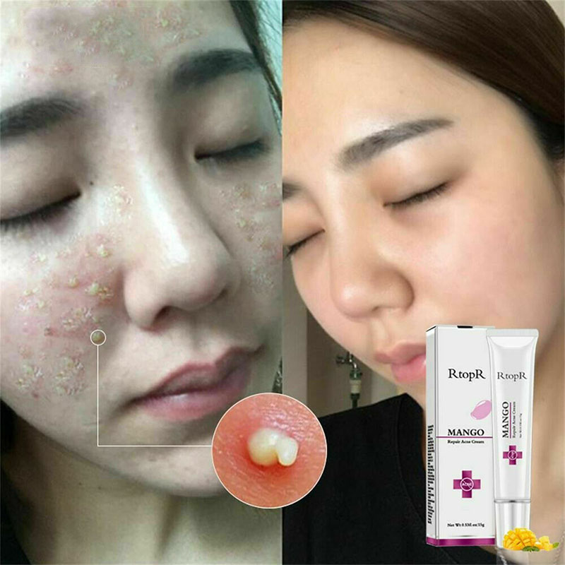 15g Mango Repair Acne Cream Pimple Scar Mark Removal Treatment Gel